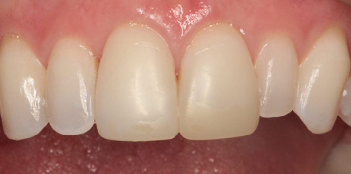 What Are Composite Veneers And Who Can Get Them?