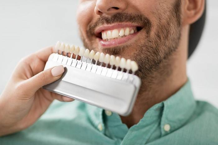 FAQ: Composite Veneers – All Your Questions Answered