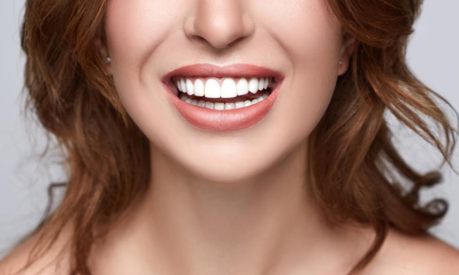 Are You A Good Candidate For Porcelain Veneers In Sydney?