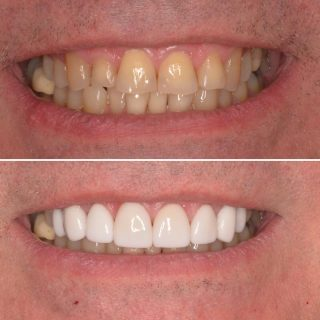 😁Give yourself something to smile about with 8 Porcelain Veneers for $6,999. 😁 This offer includes a FREE veneer consultation.  Call us on 0293318114 to book an appointment.  #veneers #veneer #porcelainveneers #teeth #teethgoals #whiteteeth #toothwhitening #smile #smilemakeover #alcadent #kennedydentalcosmetics #teethsmile #veneerssydney #sydneyveneers