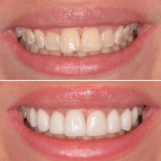 Beautiful Smile made better with our 8 porcelain veneers 🤩  Book your appointment now for a free veneer consultation  appointment. Call us on 0293318114 or email us on info@kennedydentalcosmetics.com.au ✨💛  For any questions feel free to DM us.   BL1 Layered  #sydneybloggers #veneers #porcelainveneers #porcelainemaxveneers #dentalveneers #veneerssydney #sydneyveneers #dentalveneerssydney #porcelainveneerssydney #teeth #dental #smile #whitesmile #bl1 #teethsmile #smiles #makingsmileshappen #smilemakeover #smilebright #whiteteeth #whiteveneers #cosmeticdentistry #cosmeticdentist #cosmeticdentistsydney #kennedydentalcosmetics