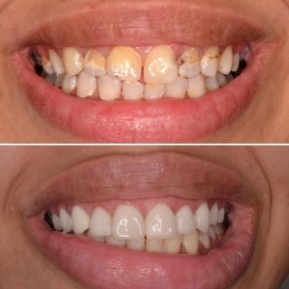 Before and After by our Queen of Veneers Dr.Irene 👸🏼🎊 8 Veneers for $6,999. This includes a free veneer consultation.  To book in call us on 0293318214 or email us on info@kennedydentalcosmetics.com.au  #veneers #porcelainveneers #emaxveneers #veneers_smile #dentalveneers #cosmeticdentist #veneerssydney #sydneydental #sydneydentalveneers #kennedydentalcosmetics #teeth