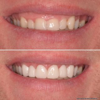 Can we make the teeth longer?  This is a very popular question.   We can sometimes make the teeth longer by removing some gum from the top of the teeth.  We call this a gingivectomy 🦷   To make this clients teeth longer we removed some gum with our laser. Using the laser stops excess bleeding and no downtime with quicker healing.   We then used 8 Veneers to achieve that perfect smile   Shade: BL3 Natural   #veneers #gingivectomy #porcelainveneers #porcelainemaxveneer #teeth #veneerssydney #veneers_smile #dentalveneers #newsmile #whiteteeth #smile #smilemakeover #hollywoodsmile #porcelainveneerspecialists #cosmeticdentistry #cosmeticdentistsydney #cosmeticdentist