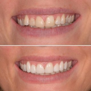 Sick of your stained and discoloured fillings?   This patient was fed up of her composite fillings that looked stained, old and discoloured. She also wanted straighter teeth without going down the route of Invisalign.  The patient wanted to go ahead with porcelain veneers we done 8 Veneers and what an amazing result we had.  Porcelain veneers do not discolour and always look fresh with good oral hygiene.  Shade- BL2 Layered  #veneers #noortho #noinvisalign #porcelainveneers #emaxveneers #emaxporcelainveneers #veneerssydney #dentalveneers #dentalassistant #dentalcosmetics #cosmeticdentistry #cosmeticdentistrysydney #sydneydentist #dentistsydneycbd #porcelainveneerssydney #hollywoodsmile #smile #smiles #teeth #teethgoals #whiteteeth #newsmile #kennedydentalcosmetics
