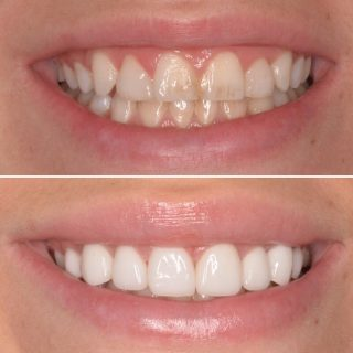 Do you want a whiter smile?  Make an appointment for a Free Veneer Consultation now. Call us on 0293318114.   🌼🌼🌼 This patient came to us with composite veneers. She hated the way they stained, chipped and discoloured constantly 🥺 We decided to go for 8 Porcelain Veneers to make this gorgeous white smile 😊  💗💗💗 #teeth #teethveneers #dentalveneers #porcelainveneers #porcelainvscomposite #porcelainemaxveneers #smile #smilemakeover #whiteteeth #porcelainveneerssydney #porcelainveneers #sydneyveneers #sydneydentalveneers #sydneydentalclinic #sydneydentalcosmetics #teethgoals  #veneerprep #veneers