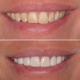 Before & After ✅  8 beautifully hand crafted porcelain veneers  8 Veneers for $6,999!! (for a limited time only)  Call us to make an appointment on 0293318114 or email us at info@kennedydentalcosmetics.com.au . #veneers #porcelainveneers #veneers_smile #dentalveneers #emaxveneers #whitesmile #veneerssydney #sydneyveneers #cosmeticdentistry #cosmeticdentist #veneergigi #veneer #veneersmile #dentist #teeth #teethgoals #whiteteeth