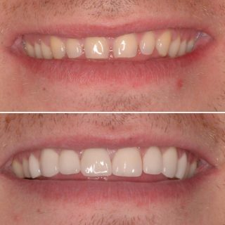 Natural Porcelain Veneers  .  8 Porcelain Veneers for $6,999 . This patient wanted to have all their gaps closed and a whiter smile but keeping it natural. We also used @philipszoom Tooth whitening ✨  We all loved this result  . Contact us on 0293318114 or email us at info@kennedydentalcosmetics.com.au to book your free veneer consultation   #bl3 #veneers #porcelainveneers #emaxporcelainveneers #dentalveneers #sydneyveneers #veneerssydney #naturalveneers #kennedydentalcosmetics #cosmeticdentistry #teeth #teethwhitening #zoomphilips #zoomtoothwhitening #porcelainveneers