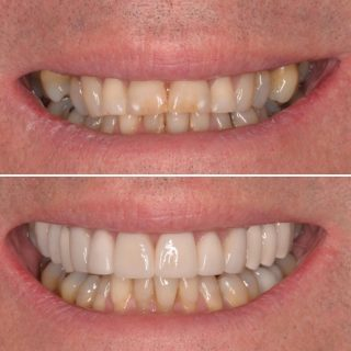 Another amazing before and after by our veneer Queen, Dr.Kennedy 👩🏼⚕️  This case included dental bridges and crowns paired with some veneers to give that perfect smile 😃   BL3 #sydneybloggers #dental #dentalcrowns #dentalbridge #dentalbridgework #dentalveneers #veneers #crowns #whiteteeth #dentalsupplies #veneerssydney #dentalveneerssydney #teethveneers #teethcrowns #teeth #dentistpaddington #dentistsydney #sydneyteeth #sydneycosmeticdentist #teethofinstagram