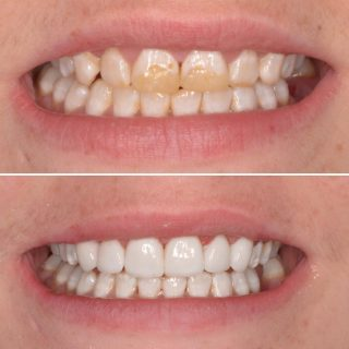 Incredible transformation just in time for this patients wedding day 👰🏻🤵🏻 We used 6 upper veneers to achieve this amazing result. ✨ Our hygienist Wendy cleaned and polished up the teeth leaving them healthy before we placed the veneers on. ✨ Having extremely good oral hygiene is so important for the longevity of your veneers. Make sure to make regular appointments with our hygienist. ✨ OFFER ON NOW- 8 Veneers for $6,999!!! Book your free veneer consultation. Call us on 0293318114 ✨ #veneers #porcelainveneers #emaxveneers #veneer #veneers_smile #veneerdentist #dentalveneers #cosmeticdentistry #cosmeticdentist #sydneyveneers #veneerssydney #dentist #dentistry #teeth #teethcleaning #hygienist #cleanteeth #fluorosisdental #newsmile #smile #whiteteeth