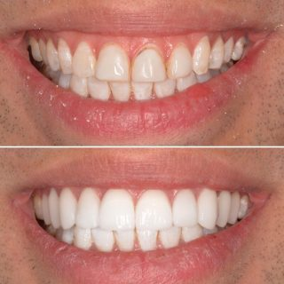 Replacing old composite veneers for beautiful handmade porcelain veneers.   We love results like this ✨  Throw back Before and Afters pre Covid   #porcelainveneers #dentalveneers #emaxporcelainveneers #teeth #porcelainveneerssydney #sydneyveneers #sydneydentalveneers #veneerssydney #sydneydentist #cosmeticdentistry #cosmeticdentistsydney #smile #hollywoodsmile #teeth #smilemakeover