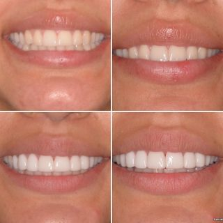 💛💛💛💛💛💛💛💛 Before    VS   After   We are back. Busy as ever creating beautiful smiles.   8 Porcelain Veneers for $6,999 INCLUDING a FREE veneer consultation!   BL1HT  Book in your free consultation by calling us on 0293318114 or emailing us at info@kennedydentalcosmetics.com.au   #porcelainveneers #porcelainveneerssydney #sydneyveneers #emaxveneers #dentalveneerssydney #dentalveneers #cosmeticdentistsydney #cosmeticdentistry #veneers_smile #teeth #teethgoals #whiteteeth #smile #hollywoodsmile #kennedydentalcosmetics #teetgram