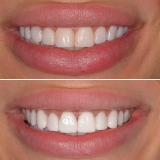 Composite v's Porcelain Veneers  This patient had got composite veneers and wanted it changed to porcelain veneers.  We loved this result 💗 #veneers #porcelainveneers #dentalveneers #compositevsporcelain #dental #veneers_smile #dentalveneers #cosmeticdentistry #dentistry #dentalcosmetics #teeth #sydneyveneers #veneerssydney #teethgoals #smilemore #smile #smileoftheday