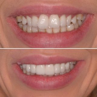 ❄️ Christmas is coming. Book in now to get your veneers before Christmas! 🎄❄️  8 Veneers for $6,999 including Free consultation.  Call us to book in on 0283318114   This patient had 8 Porcelain Veneers to widen and straighten her smile. We loved the result. 😀 using the shade BL1 Layered 🤩   #veneers #porcelainveneers #sydneybloggers #veneerssydney #veneers_smile #dentalveneers #smile #teeth #dentalveneers #cosmeticdentistsydney #sydneycosmeticdentist #sydneydentist #sydneyveneers #emaxveneers #ivoclarvivadent #ivoclar #kennedydentalcosmetics