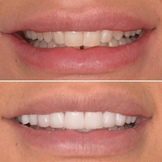 Before and After 💫😁  This lady wanted straight,white teeth to help widen her smile and we achieve it with these 10 handmade porcelain veneers.   ✨✨ 10 Veneers for $8750 ✨✨  BL1 LT   #veneers #sydneyveneers #emaxporcelainveneers #emaxveneers #dentalveneers #dentalveneerssydney #sydneycosmeticdentist #cosmeticdentistry #smile #teeth #teethsmile #whiteteeth #porcelainveneers #kennedydentalcosmetics #teeth #teethgoals #smiles #smilegoals #cosmetics #whiteteeth_smile