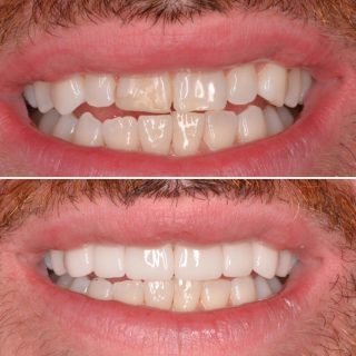 Sick of your composite fillings chipping and staining?  Well this patient was, he had his composite fillings redone over and over again and they kept breaking and changing colour.   Our patient decided to go for porcelain veneers to not only break away from the failing composite fillings but to tidy up his smile making it bigger and whiter.   We went for a very natural white veneer so that the change wasn't too much against his lower teeth.  BL2 HT  Make your free veneer consultation now by calling 0293318114 and sending us a message.   #porcelainveneers #veneers #teeth #teethveneers #dentalveneers #veneerssydney #dentalveneerssydney #porcelainemaxveneer #smile #smilemore #hollywoodsmile #whiteteeth #veneers_smile #emaxveneers #cosmeticdentistry #cosmeticdentist #cosmeticdentistsydney