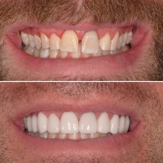 This patient didn't like the spacing he naturally had and wanted a whiter straighter smile. We made it happen! 💙  Using 10 porcelain veneers ✨  Great financial options available using @zip_au  No interest repayment 😍  Book in your FREE veneer consultation by calling us at 0293318114   #veneers #veneerssydney #sydneyveneers #porcelianveneers #teeth #veneers_smile #sydneyveneers #cosmeticdentistry #cosmeticdentist