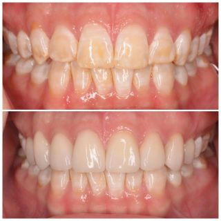 FLUOROSIS -  This is a very common condition, it is when the tooth's enamel was disrupted during formation.   The most common cause is children swallowing toothpaste and not spitting it out. The fluoride in the tooth paste disrupts the formation of new teeth.   Most cases of fluorosis will appear as white spots or lines  on the teeth. In severe cases the enamel can be misshapen and the teeth can look brown or grey.   This CANNOT be treated with Tooth whitening- this is something wrongly suggested often. 🙈😳  We often treat people that have fluorosis with veneers.  Here is a perfect example of a case were someone was so conscious of their teeth. We made 8 Porcelain Veneers and gave this patient so much confidence 😁💫  We used a natural veneer BL3 Layered 🤩  #dentalfluorosis #fluorosis #dentalveneers #porcelainveneers #emaxporcelainveneers #veneerssydney #veneers #sydneyveneers #emaxveneers #newsmile #happysmile #veneers_smile #dental #dentalveneers #dentist #cosmeticdentistry #cosmeticdentistsydney