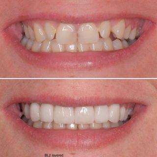 We are BACK 💫🎉🎉  Look at this amazing before and after 😍😁  We have a new offer on veneers  8 Porcelain Veneers for $7,999!   Call us on 0293318114 to book in your free veneer consultation   #veneers #dental #dentalveneers #teeth #porcelainveneers #porcelainveneerssydney #emaxporcelainveneers #cosmeticdentistry #teethgoals #smile #smilemakeover #dentist #cosmeticdentistsydney #sydneyveneers