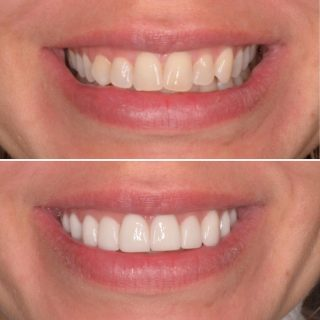 Friday Over and Out. 🎉 We will now be closed until Tuesday the 15th of June.  We hope everyone enjoys the long weekend.   10 Upper Porcelain Veneers for $8750.   #porcelainveneers #veneers #veneerssydney #veneers #porcelainemaxveneers #teeth #dentalveneers #dentalveneerssydney #dental #cosmeticdentistry #cosmeticdentist #cosmeticveneers #sydneyveneers