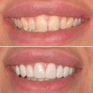 New Smile 😁   We achieved a Fuller, whiter smile using 8 Emax Porcelain Veneers 💫   Dr.Kennedy's next availability is on Monday the 21st of June. Book in for your FREE Veneer Consultation 📞 0293318114  BL1 Layered   #smile #smilemore #smilemakeover #teeth #veneers #sydneyveneers #veneerssydney #porcelainveneers #porcelainveneerssydney #whiteteeth #cosmeticdentistry #cosmeticdentist #cosmeticdentistsydney #dentalveneers #dentalporcelainveneer #sydneycbddentistry #sydneydentist #veneerssmile #emaxporcelainveneers