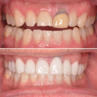 Happy Friday! 💜  Finishing the week with a beautiful result.  9 Porcelain Emax Veneers and 1 Crown 👑  Lower Zoom tooth whitening using the best @philipszoom ✨  Have a great weekend and we will see you all Monday 💕   BL2 Layered   #beforeandafter #beforeandafterteeth #teethsmile #smiles #smile  #veneers #porcelainveneers #emaxporcelainveneers #teeth #veneerssydney #sydneyveneers #teethwhitening #zoomtoothwhitening #philipszoomwhitening #philipszoomteethwhitening #dentalveneers #dentalcosmetics #kennedydentalcosmetics #dentistry #cosmeticdentistry #hollywoodsmile #sydneyaustralia #dentistsydney #dentistsydneycbd