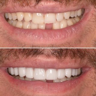 10 Porcelain Veneers   White teeth ✅  Straight teeth ✅ No Discolouration ✅ Happy Customer ✅   Book in now for your FREE veneer consultation. Email us at info@kennedydentalcosmetics.com.au or call us on 0293318114 📞💻   BL1 Layered Natural   #sydneyveneers #veneerssydney #dentalveneers #kennedydentalcosmetics #teethveneers #dentalveneerssydney #porcealinveneers #porcelainveneerssydney #whiteteeth #hollywoodsmile #smile #teeth #cosmeticdentistsydney #cosmeticdentistry #dentalveneers #happycustomer
