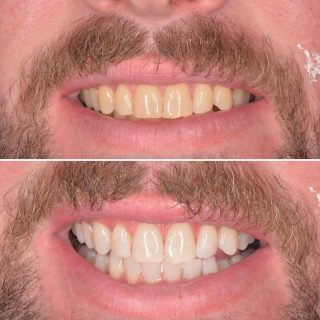 ✨Zoom in-chair Tooth Whitening ✨ . This was such an amazing result with tooth whitening alone. . $750 including teeth cleaning, tooth whitening and top up kit. . If you have you want whiter teeth give us a call on 0293318114 to book in. . #toothwhitening #zoomtoothwhitening #philipzoomwhitening #zoomwhitening #sydneytoothwhitening #whiteteeth #philipszoomwhitespeed #kennedydentalcosmetics #toothwhiteningresults