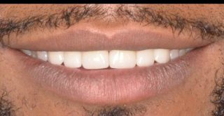 Look at that smile 🤩  Swipe to see the before..➡️   Do you want to close the gaps in your teeth? Porcelain veneers can be the perfect option for you.   Here we used 6 porcelain veneers in the shade BL3 to close gaps and achieve a whiter smile 😀   We loved this result!  Call us on 0293318114 to book in for your free veneer consultation. #porcelainveneers #veneers #dentalveneers #emaxveneers #sydneyveneers #veneerssydney #veneers_smile #smile #sydneyteeth #sydneycosmeticdentistry #sydneycosmeticdentist #cosmeticdentistry #teethwhitening #philipszoomwhitening #hollywoodsmile #teethbeforeandafter #dentaltransformation #whiteteeth #whitesmile