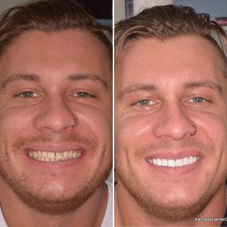 ✨We loved this smile transformation. 😁✨ Great teeth for a great guy. 👌🏼 We love how our work brightens up peoples lives and smiles.  8 Porcelain Veneers for $6,999!! 🌻 Call us on 0293318114 to make a free Veneer Consultation!  #veneers #porcelainveneers #dentalveneers #dentalveneer #emaxporcelainveneers #emaxveneers #ivoclarvivadent #teeth #teethveneers #cosmeticdentistry #cosmeticdentist #cosmeticveneers #beforeandafter #teethgoals #whiteteeth #teethsmile #dentist #dentistry #veneerssydney #sydneyveneers #dentalveneerssydney #dentistsydney #dentistpaddington #dentistsydneycbd