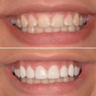 Check out that smile 😃 ❤️ . If you want straight teeth without braces, veneers are a great option 🤩  Contact us to book in your free veneer consultation .  Call us on 0283318114 or email us at info@kennedydentalcosmetics.com.au   #veneers #dentalveneers #veneerssydney #sydneyveneers #sydneydentalveneers #porcelainveneers #porcelainveneerssydney #porcelainemaxveneers #emaxveneers #whiteteeth #straightteeth #smile #smilemore #smiles #teeth #teethgoals #hollywoodsmile #kennedydentalcosmetics #cosmeticdentistry #cosmeticdentistrysydney