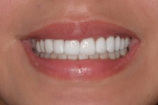 Swipe left for the before image.   10 Porcelain Veneers   Don't forget your veneer consultation is free!  Do you want to break up your payments? Try out @zip_au  No Interest on your repayments 🤩  Call us to book your appointment 0293318114   BL1 Layered   #veneers #veneerssydney #teeth #dentalveneers #dental #veneers_smile #porcelainveneers #emaxveneers #veneersmile #cosmeticdentistry #cosmeticdentistrysydney #whiteteeth #whiteteethsydney